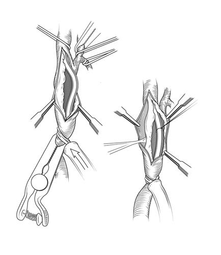 endarterectomy.jpg