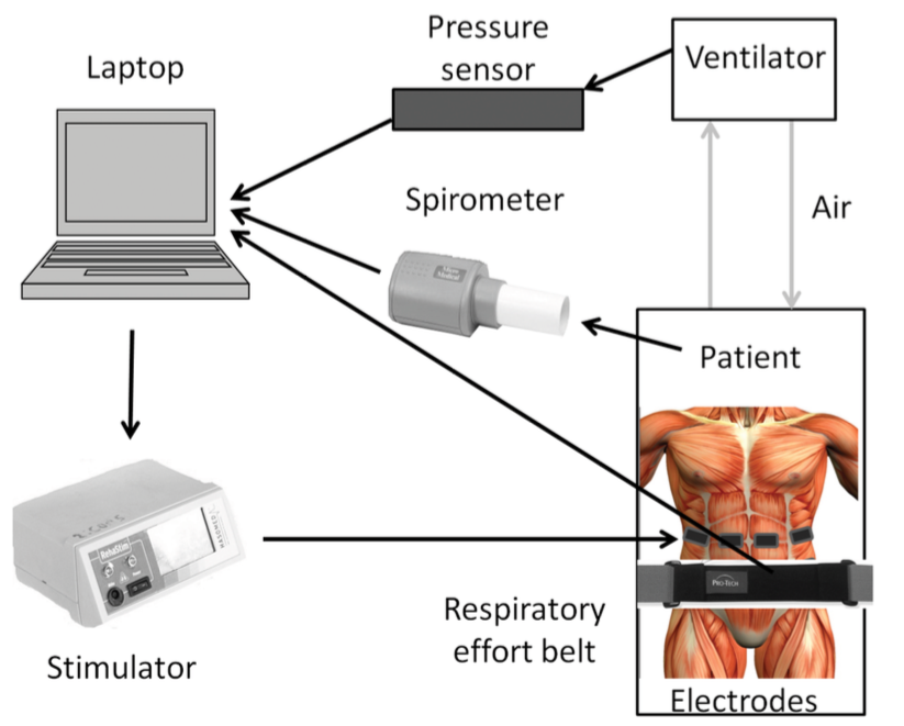 A system diagram with the RehaStim 1 FES Unit from Hasomed GmbH