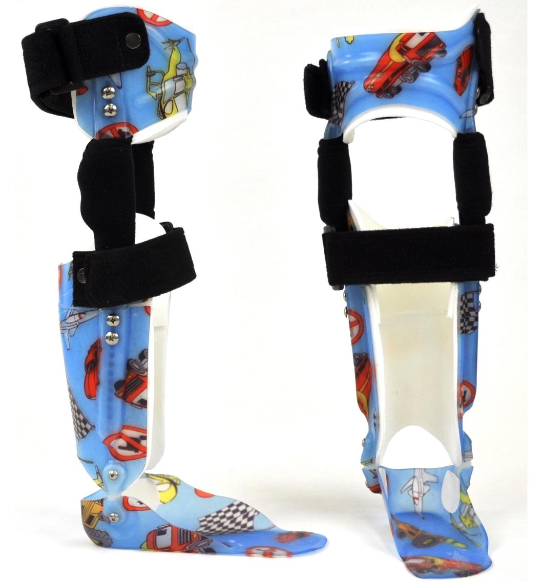 Custom Blounts Orthosis
