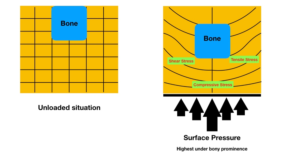 Pressure applied to tissue causes complex patterns of shear effects