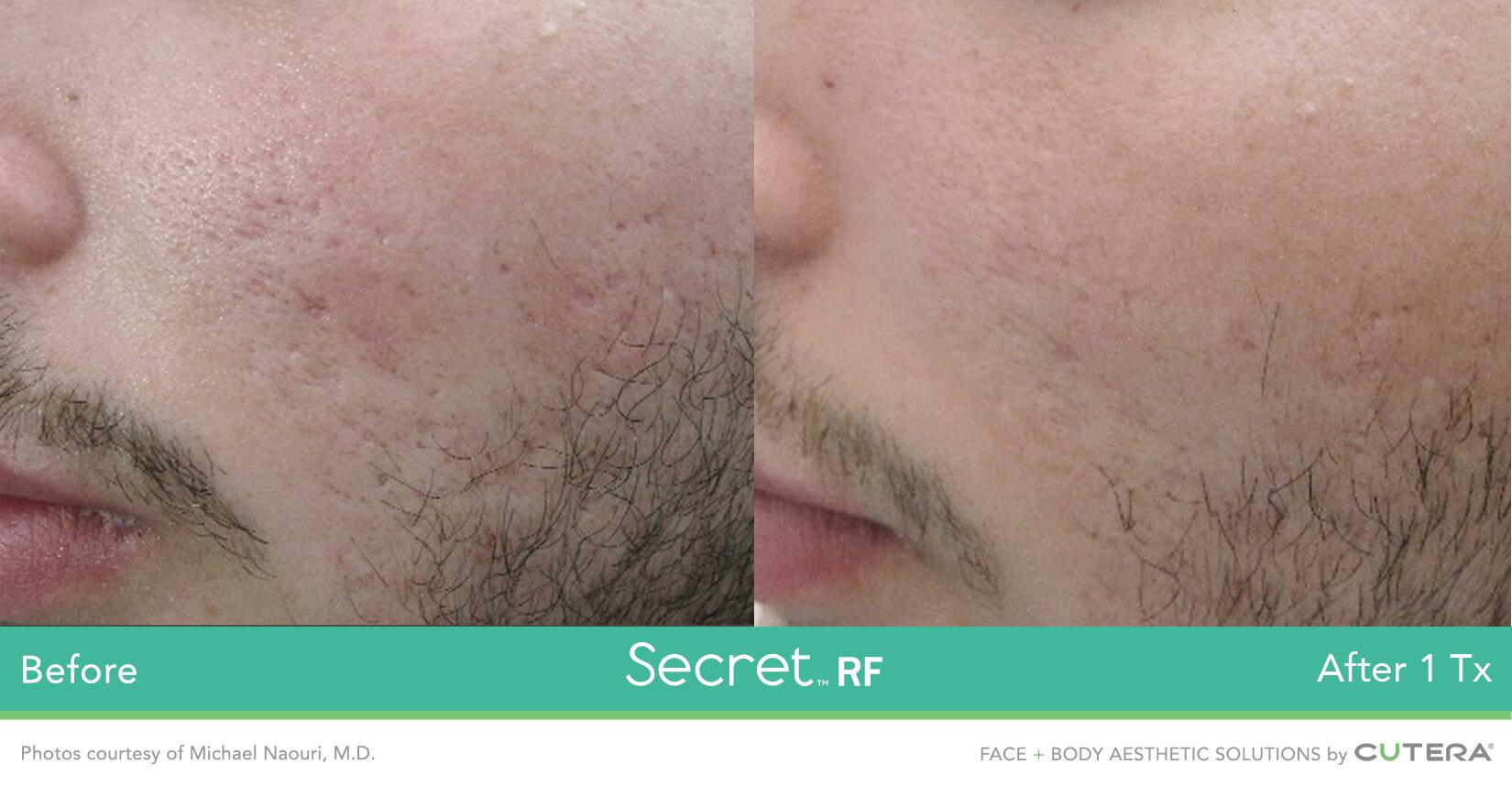 Secret-RF-3.jpg