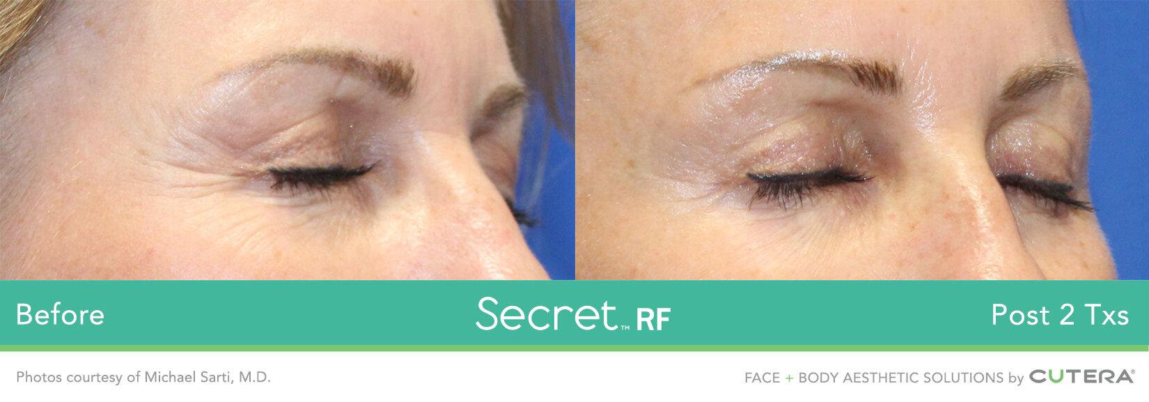Secret-RF-11.jpg