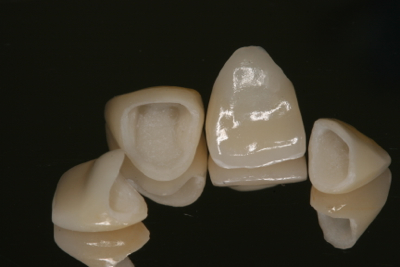 Full Ceramic Crowns
