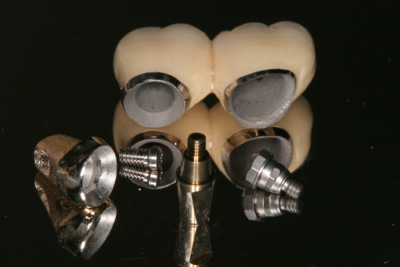 Bespoke implant crowns