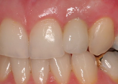 Crown replacing front tooth