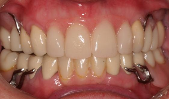 New Upper & lower part dentures