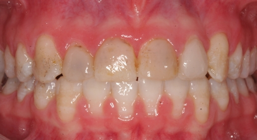 Congential Defects in tooth
