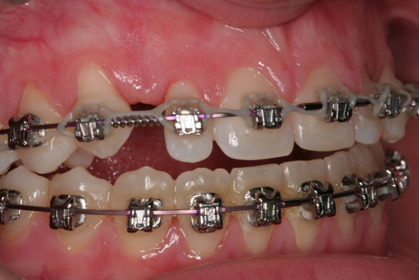 Congenital missing teeth and jaw problems