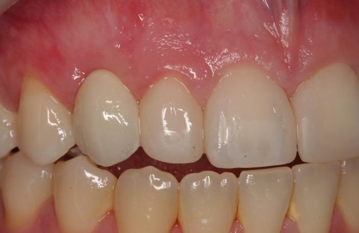 Orthodontics, Bonded bridges, Resin build ups