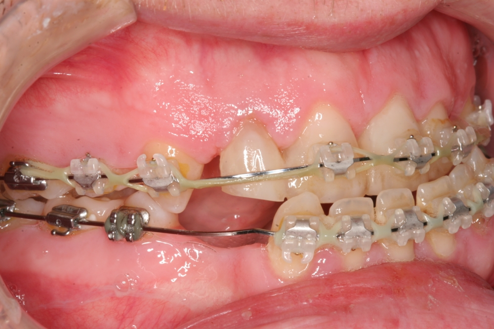 Jaw problems, Congenitally missing teeth
