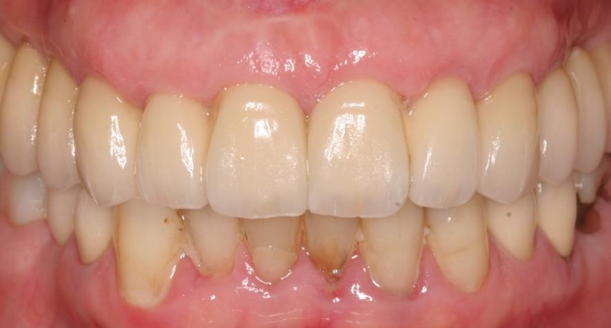 Porcelain Implant Bridges