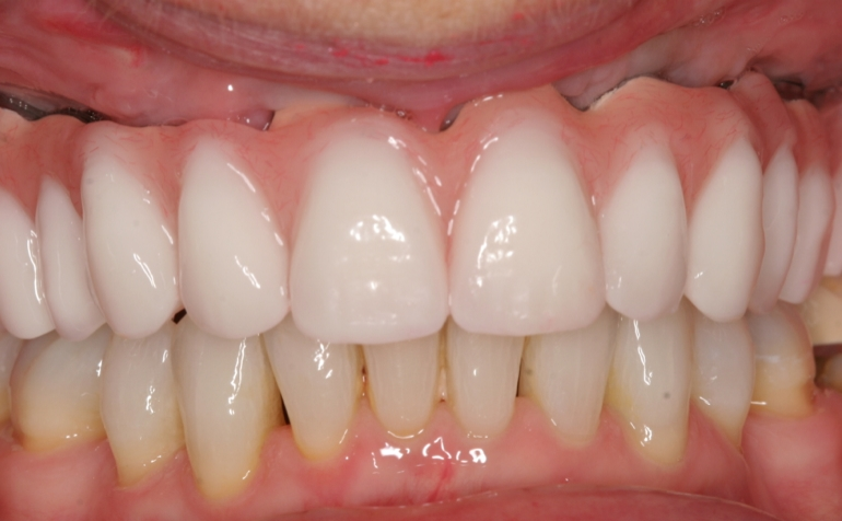 Implant Reconstructions