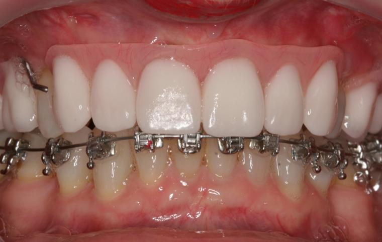 Braces, Surgery, Gum treatment