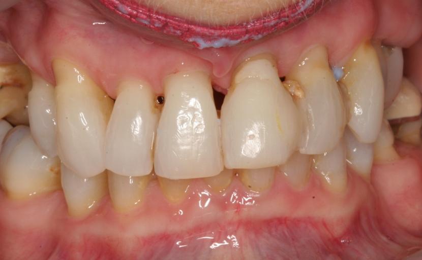 Gum disease, Bite problem
