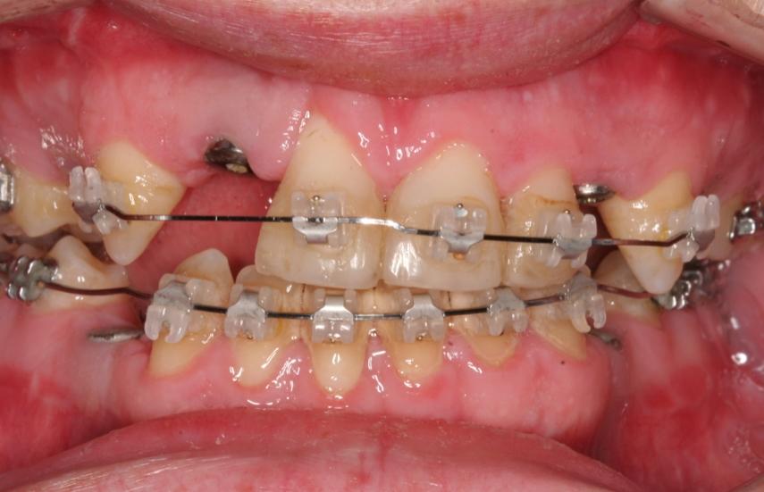 Jaw Surgery, Orthodontics