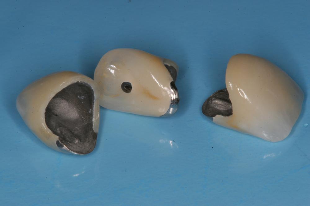 Metal ceramic crowns