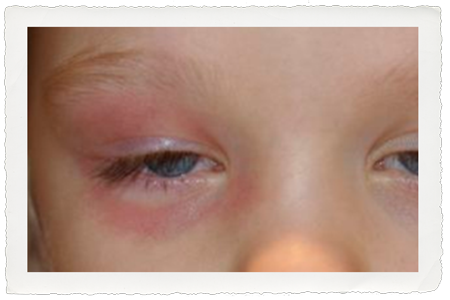 Periorbital cellulitis - this rim of redness that circles the entire eye needs immediate attention
