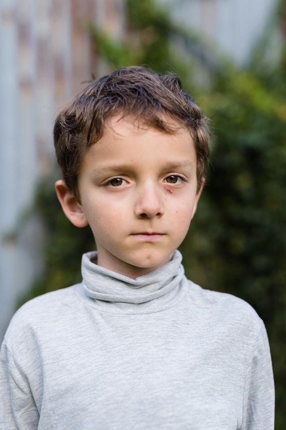 Stocksy bullied boy.jpg