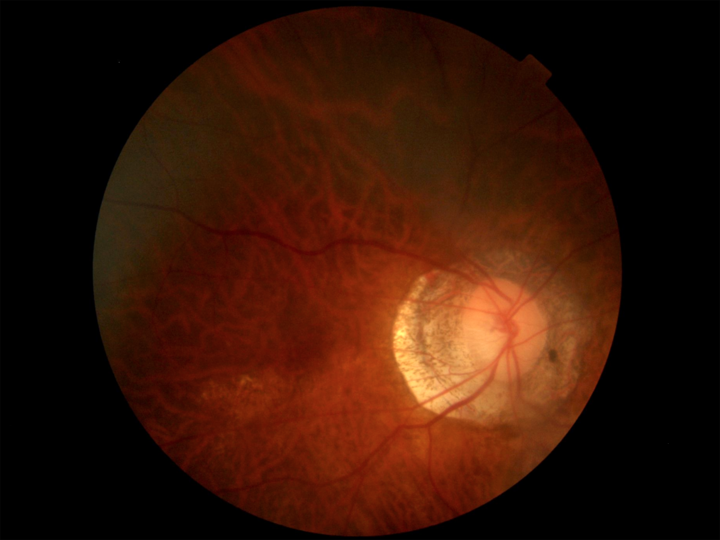 high myopia retina
