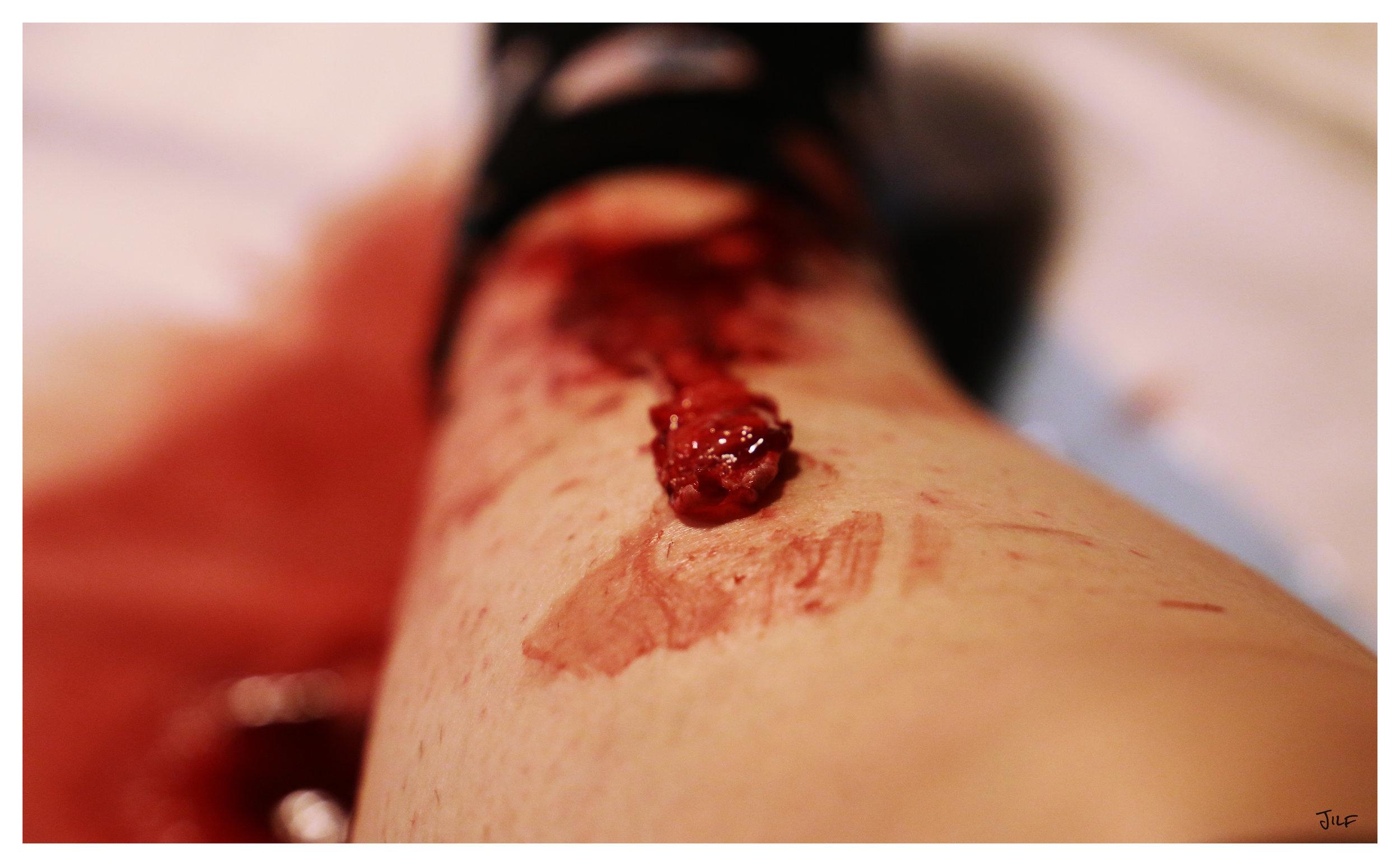 The peeled skin