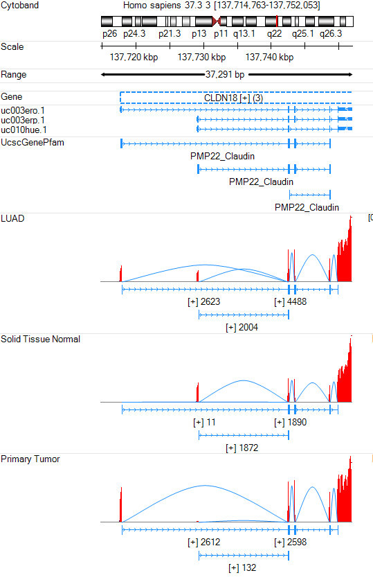 Lung adenocarcinoma sample RNA-Seq data in Genome Browser with Exon Junction Curves. The LUAD track represents all lung adenocarcinoma samples. The Solid Tissue Normal and Primary Tumor tracks represent the normal and tumor sample from lung adenocarcinoma subject respectively.