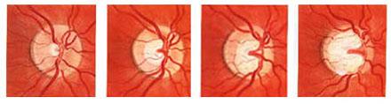 Glaucoma Optic Nerve Progression