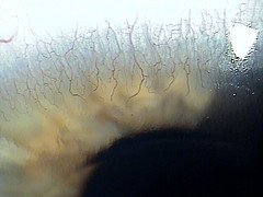 Corneal Neovascularization from contact lens over-wear