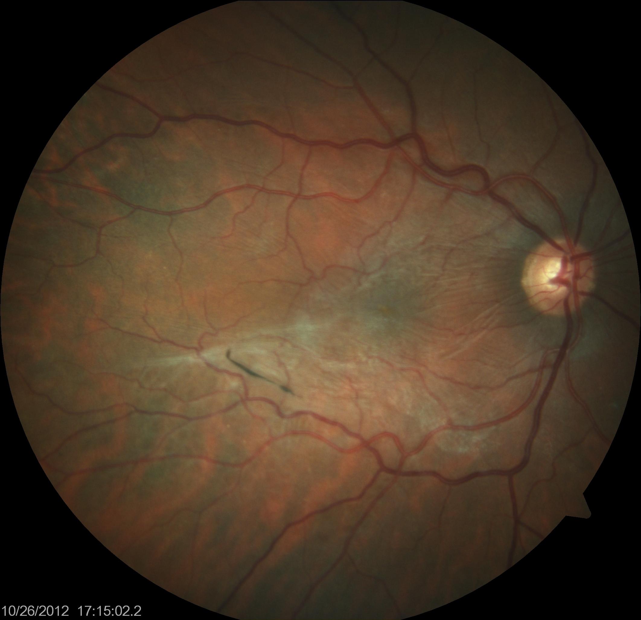 Epi-Retinal Membrane | Macular Pucker in patients right eye | Eye Columbus