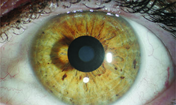 The KAMRA Inlay is placed just under the surface of the cornea. Photo by  Jay Pepose, MD