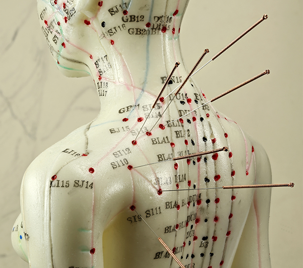 TBHW Acupuncture Specialties - TCM (Traditional Chinese Medicine), NADA, Korean Sasang Constitutional Medicine, Dry Needling, 5E
