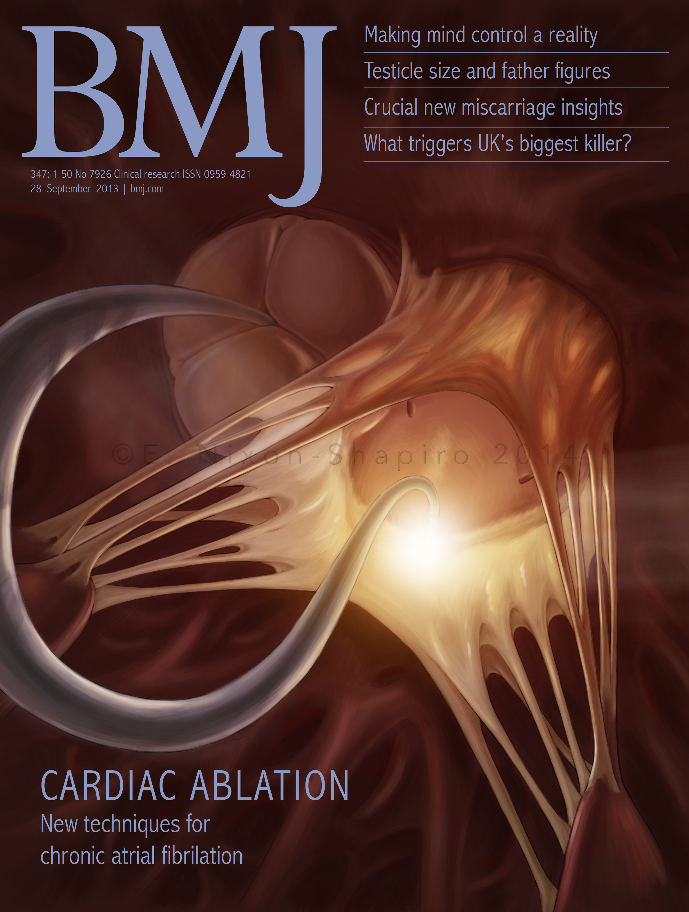 Mock Journal Cover: Cardiac Ablation of the Mitral Valve