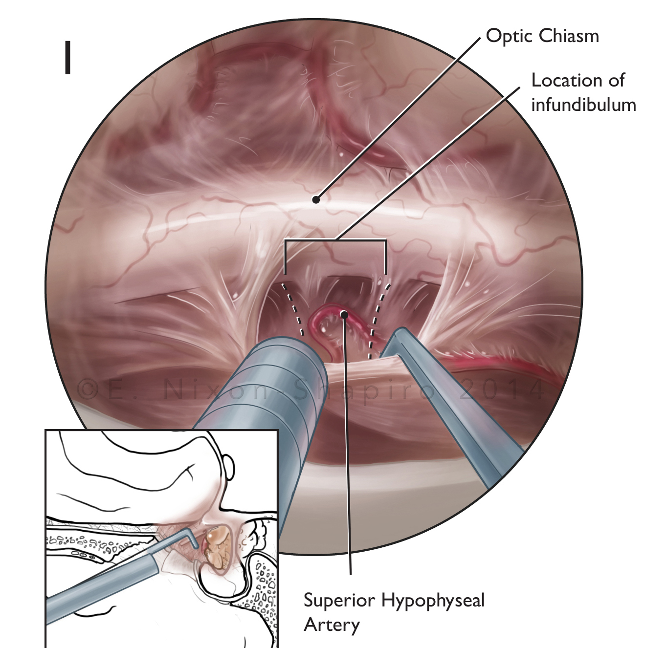 Transnasal Approach for Craniotomy with Craniopharyngioma Removal, Detail