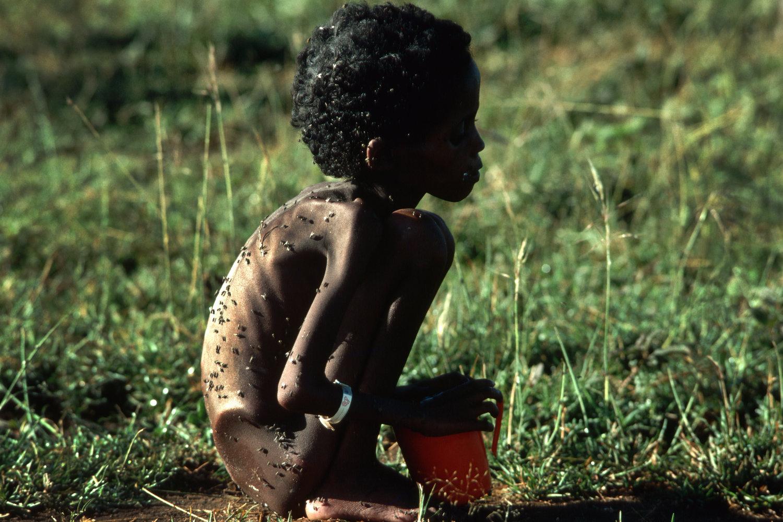 "Ethiopian refugee, 1986<span class=""photo-essays-link""><span class=""separator"">・</span><a href=""/photo-essays"">Photo-essays</a></span>"