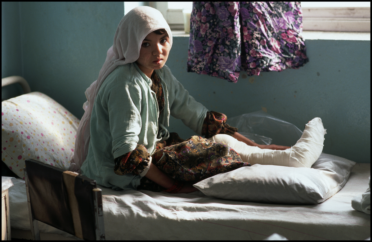February 1996, Kabul, Afghanistan --- A young woman wounded from a land mine sits in bed at a Red Cross hospital in Kabul, Afghanistan.