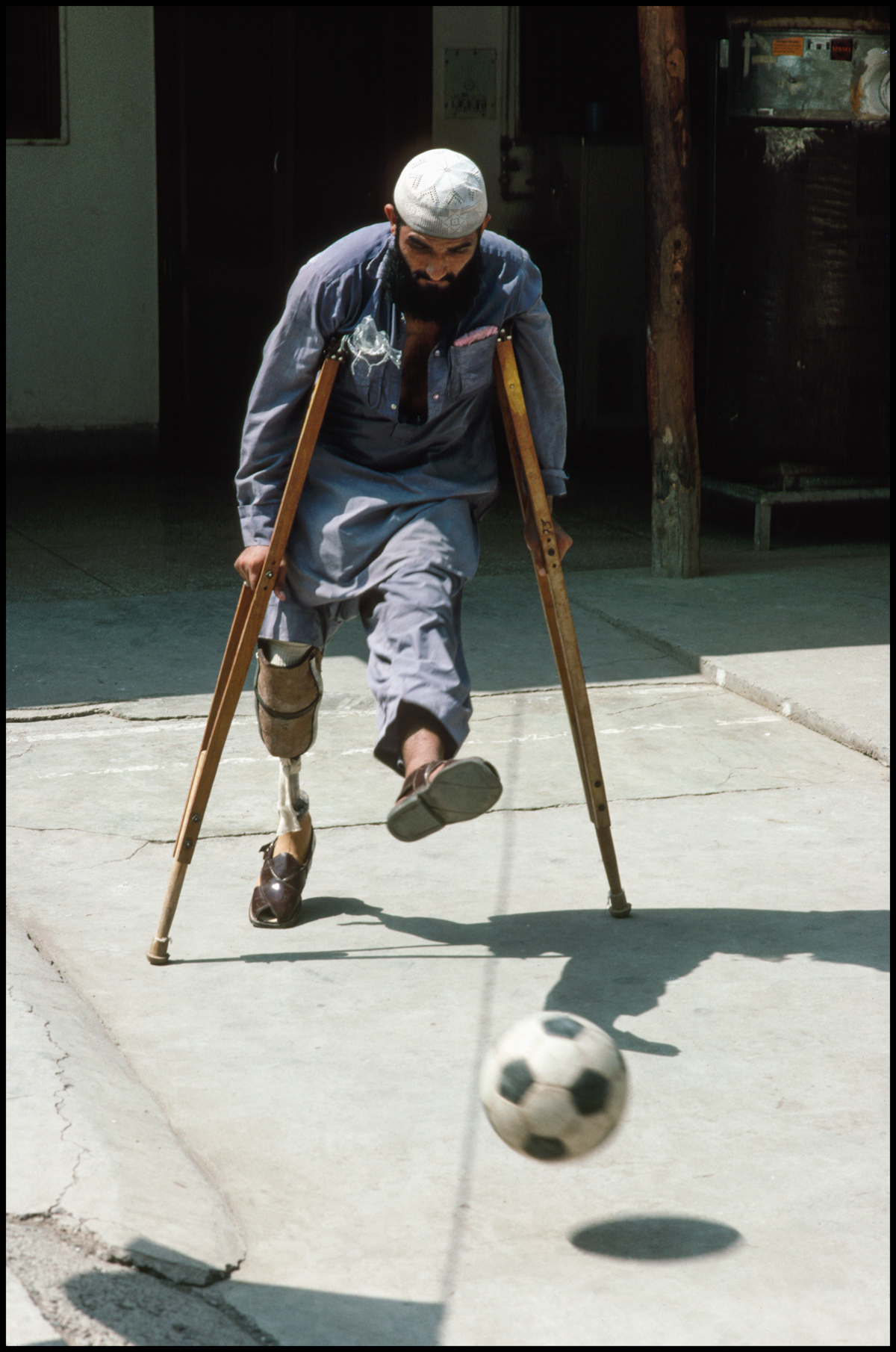 1989, Afghanistan --- Afghans Injured by Land Mines