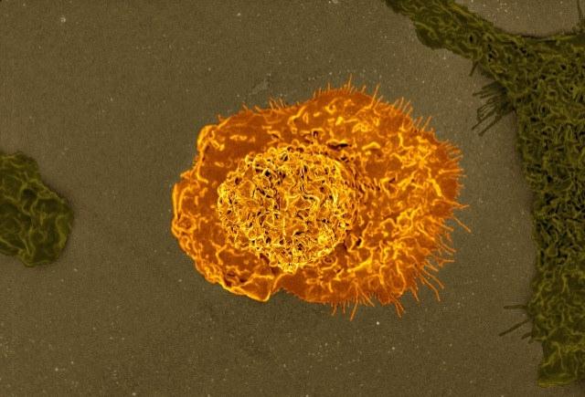 Macrophage by NIAID   CC BY 2.0