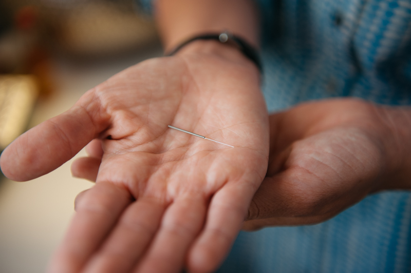 "Acupuncture uses needles to access the body's ""Qi"" or life force."