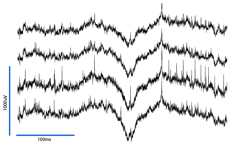 Raw traces recorded at 30KHz with bandpass filters at 1Hz - 9kHz