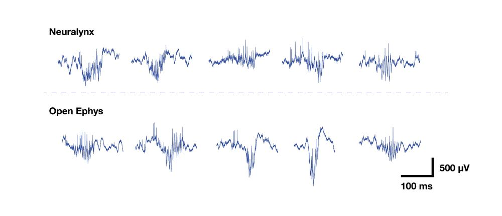 Since this was a hippocampal electrode, we could directly compare ripple oscillations recorded by the two systems. Again, we can't see any difference.