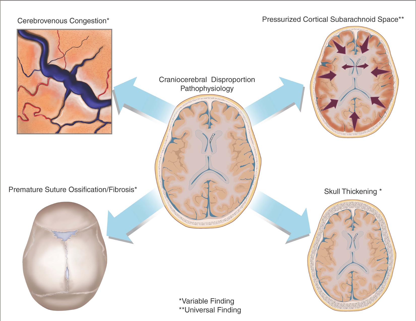 Pathophysiology of Craniocerebral disproportion