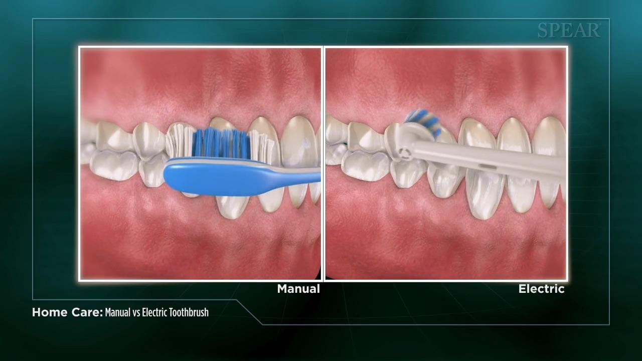 Manual Versus Electric Toothbrush