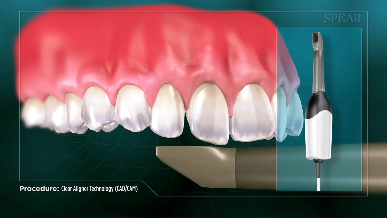 Clear Aligner (CAD/CAM)