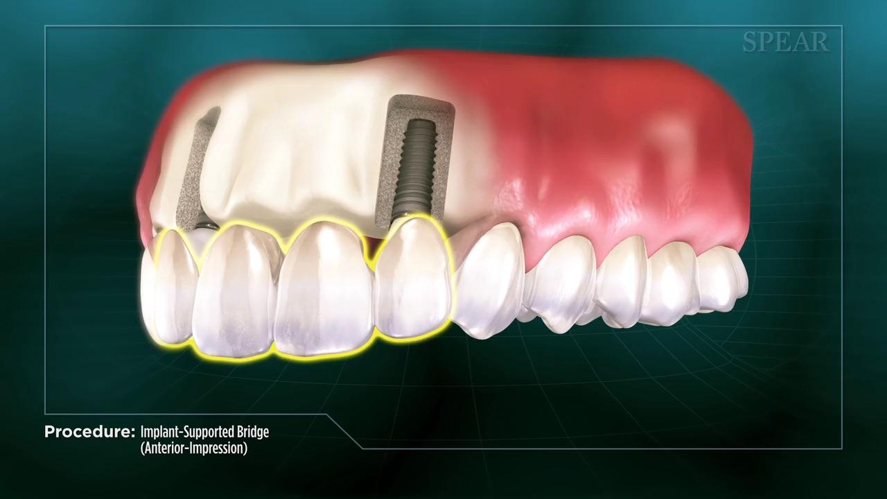 Bridge with Implant -Impression