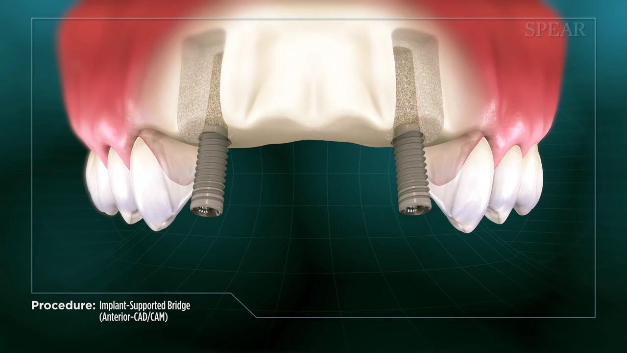 Bridge with Implant (CAD/CAM)