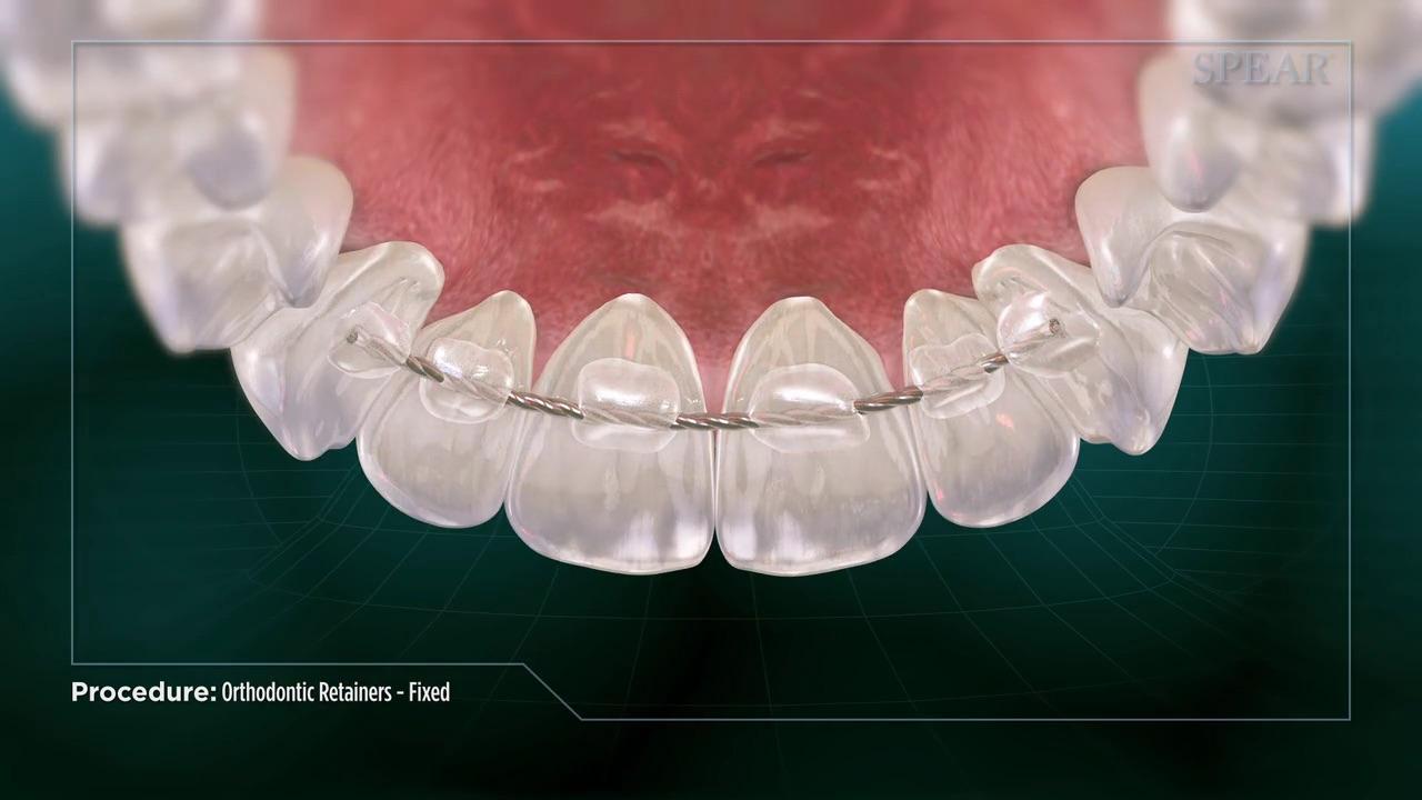 Orthodontic Retainers - Fixed