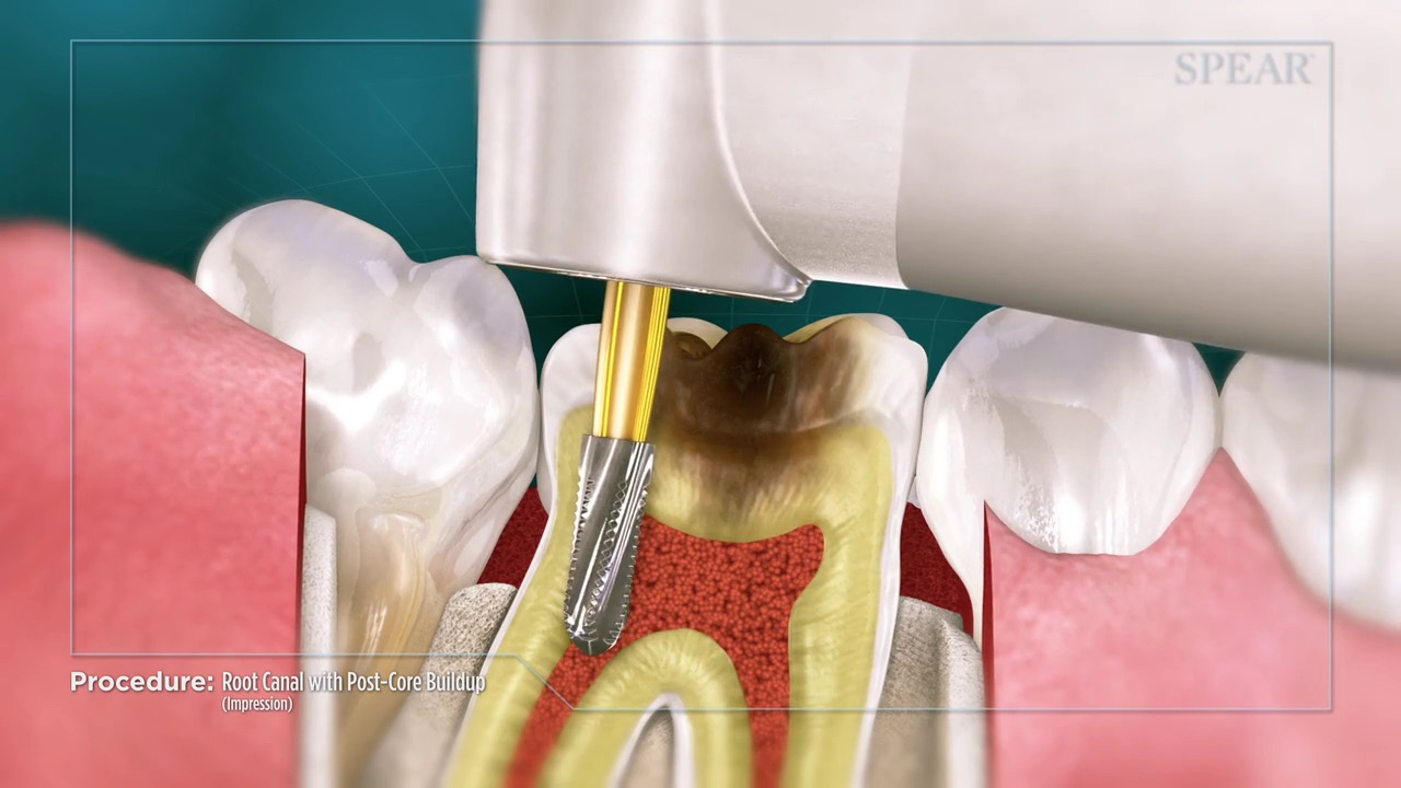 Root Canal / Post and Core (No File)