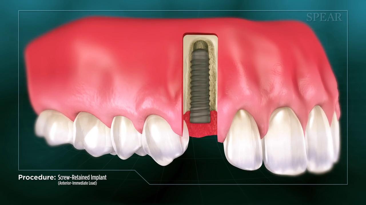 Implant / Immediate Load