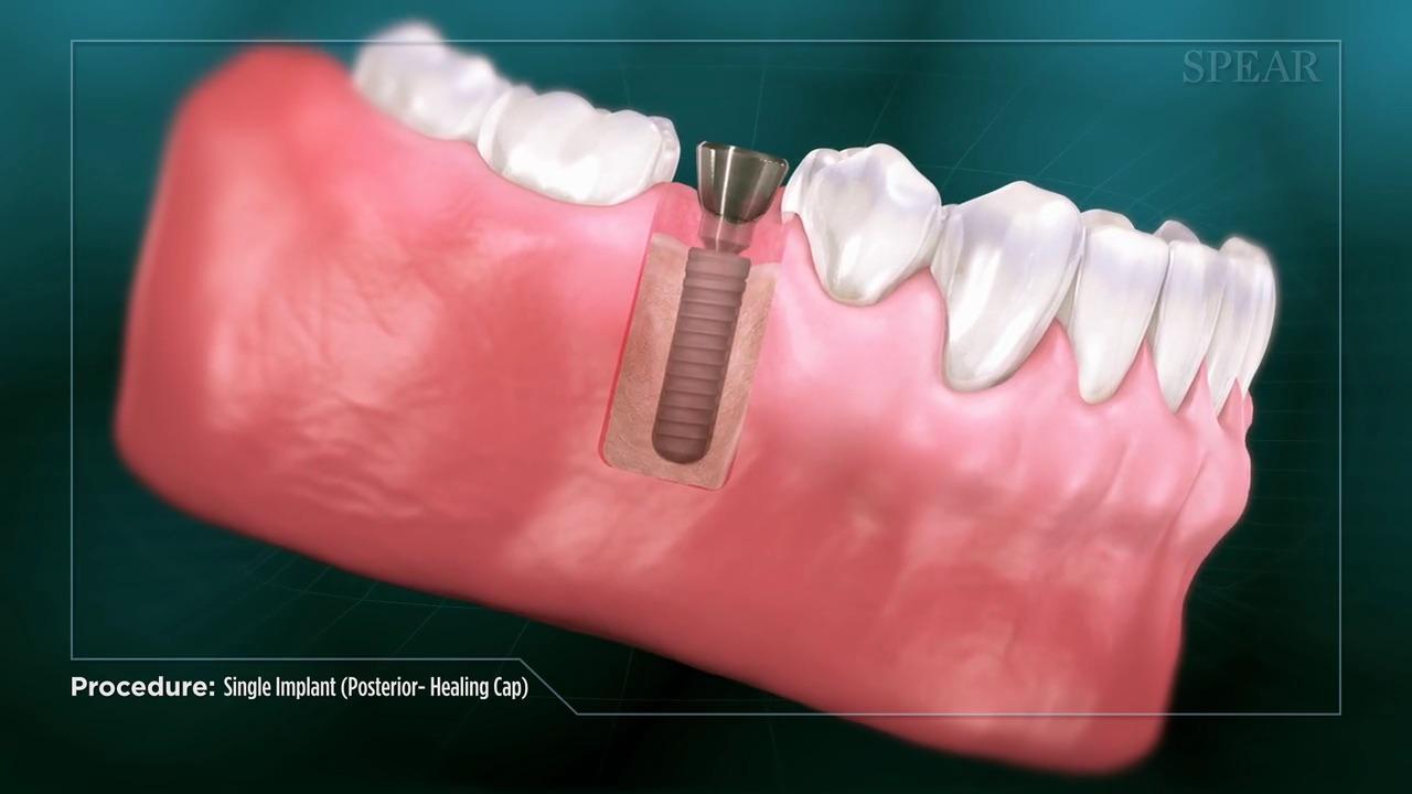 Implant / Healing Cap (Posterior)