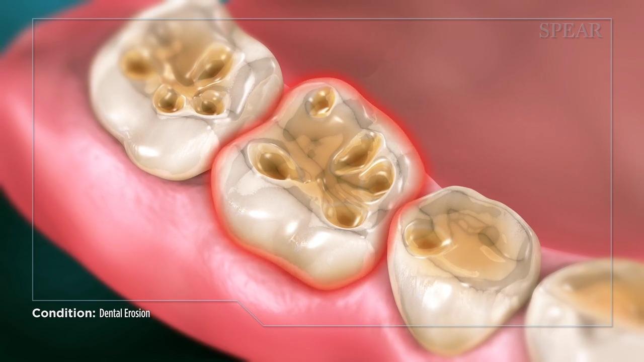 Dental Erosion