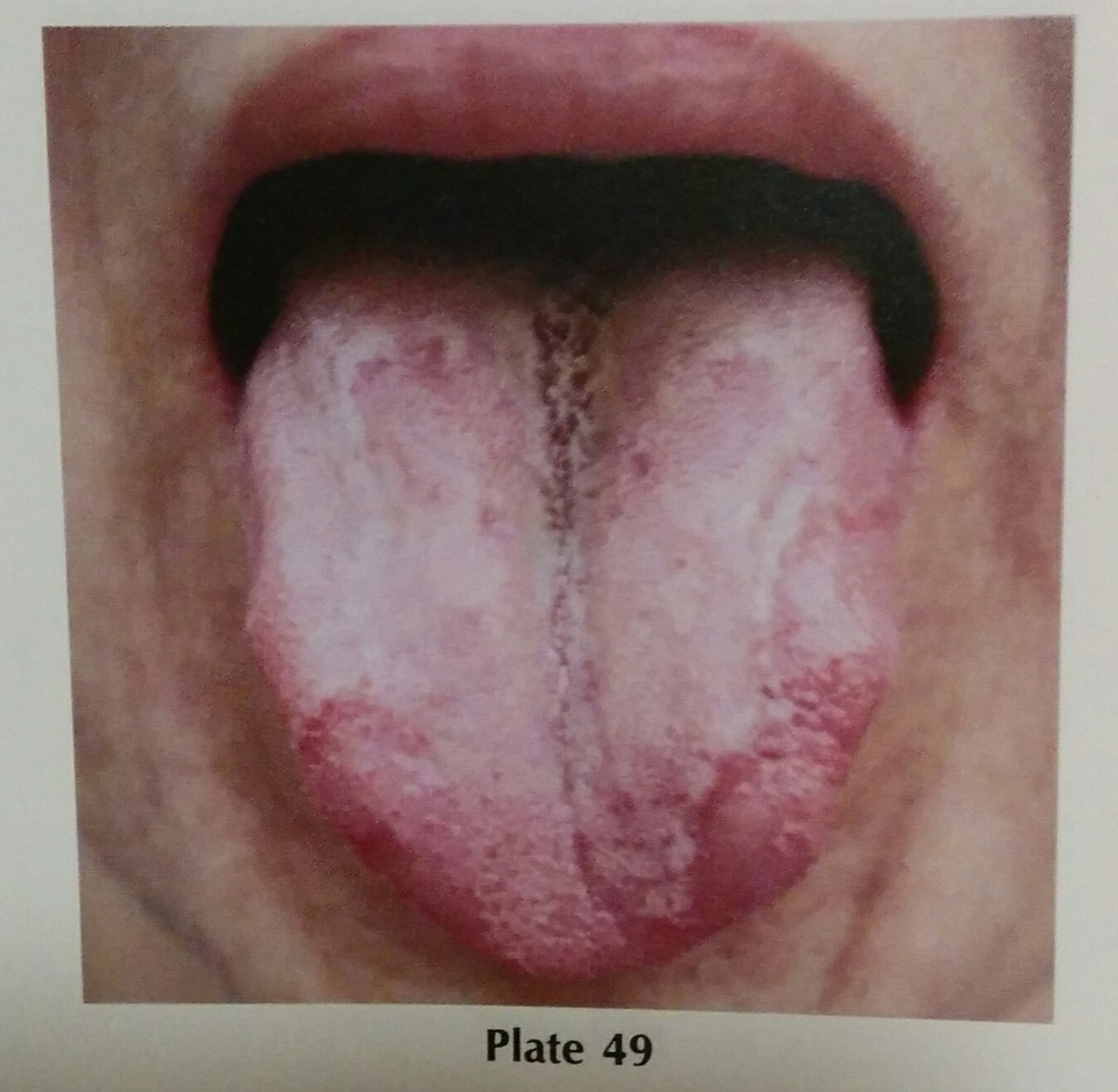 Image from Tongue Diagnosis in Chinese Medicine by Giovanni Maciocia.